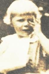 Elizabeth Westlin Guion, at 5, with her broken arm